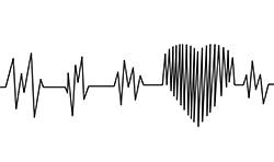 servizio elettrocardiogramma